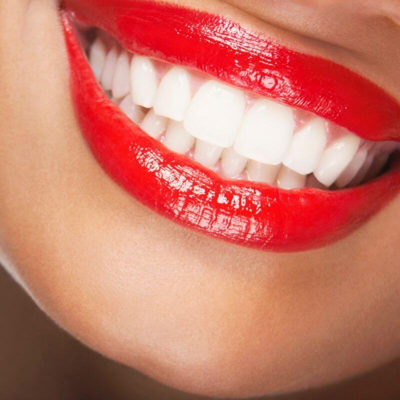 teeth-whitening-beautifuljobs